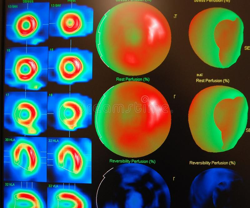 nuclear medicine stress test royalty free stock photos