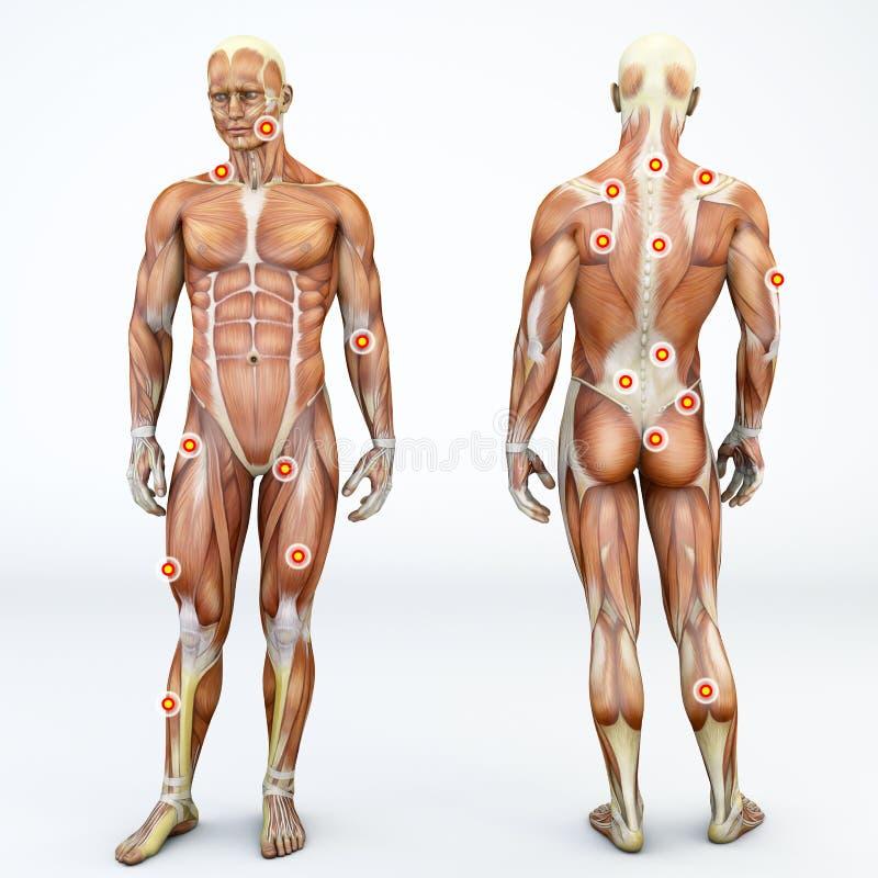 Myofascial-Auslöser zeigt, ist hyperirritable Stellen im umgebenden Skelettmuskel der Binde Vordere und hintere Ansicht eines Man lizenzfreie abbildung