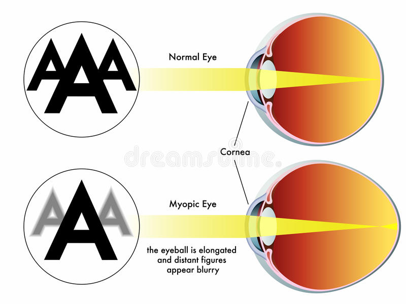 Download Myopia stock vector. Illustration of ametropia, lenses - 27053262