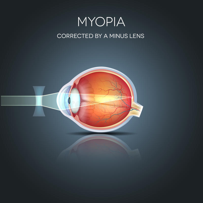 Myopia corrected. By a minus lens. Myopia is being short sighted (near sighted). Far away object seems blurry royalty free illustration