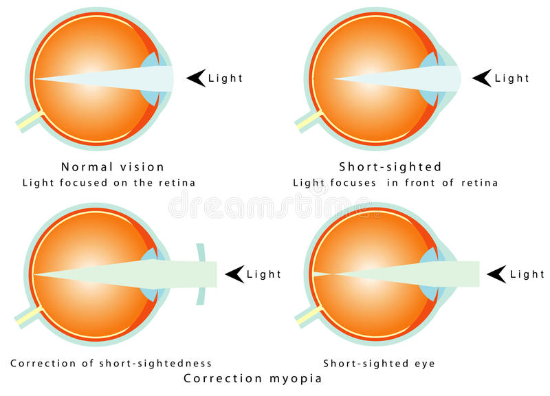 Myopia. Normal vision, light focused on the retina. Short - sighted, light focused in front of retina, so the eye interprets a blurred image. Correction of stock illustration