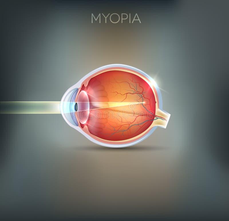 Myopia, wzroku nieład ilustracji