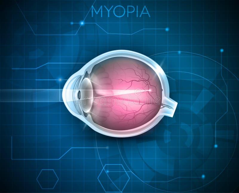 Myopia, wzroku nieład ilustracja wektor