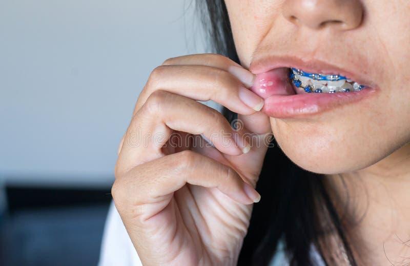 Nära upp av var på den asiatiska kvinnan för mun eller för kant, muntligt hälsoproblembegrepp arkivfoto