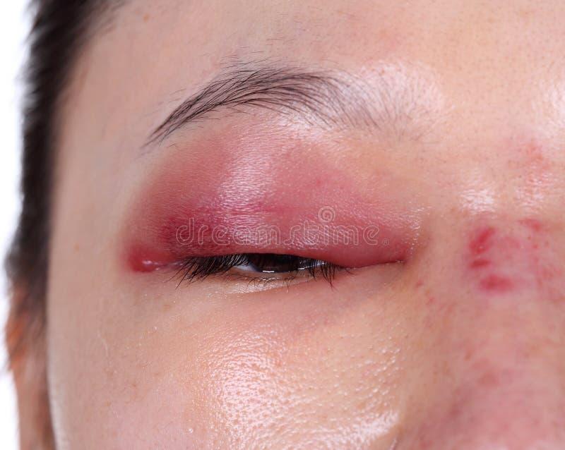 Närbild av övreögonlockdyningen efter näsjobb arkivfoto