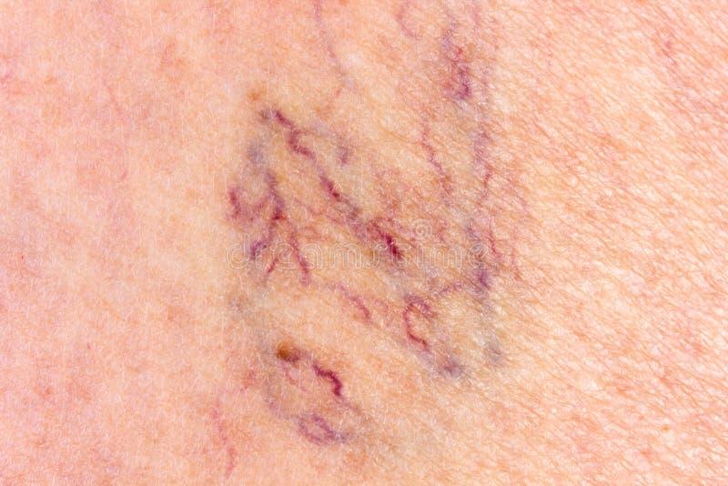 Närbild av benet med åderbråcks åder arkivfoto