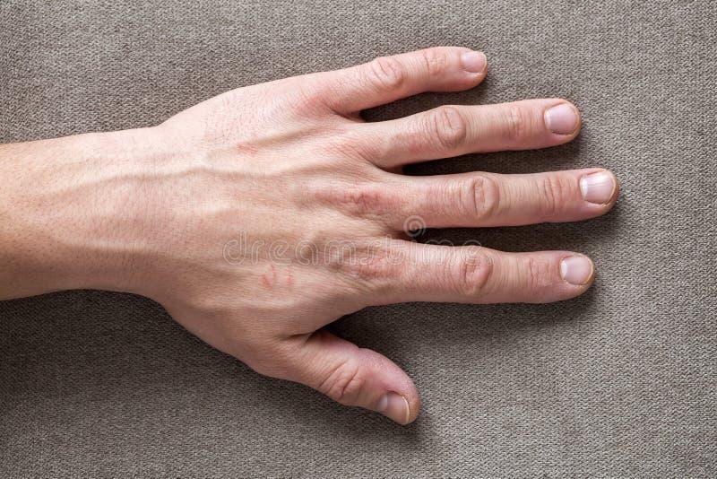 Närbild av den manliga manliga arbetarhanden med grov hud och korta fingernaglar som vilar på plan kopieringsutrymmebakgrund, bäs arkivfoto