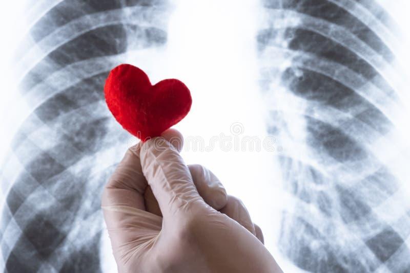 Närbild av en läkares hand En doktor eller en laborant i en vit handske rymmer en röd hjärta för souvenir över en röntgenstråle a arkivbilder