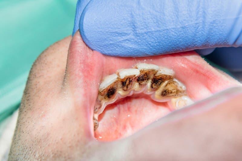 Närbild av en mänsklig rutten carious tand på behandlingetappen arkivbild