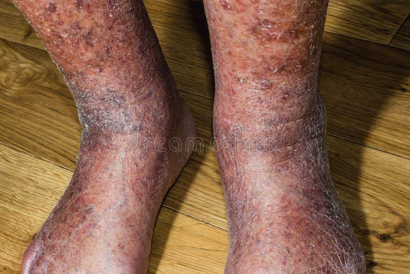 Närbild av hud med åderbråcks åder royaltyfri foto