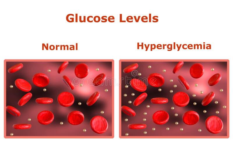 N?veis da glicose no sangue, tabela com n?veis normais e uma outra tabela que indica o diabetes ilustração do vetor