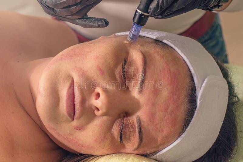Naald mesotherapy behandeling op een vrouwengezicht stock foto