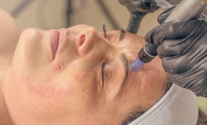 Naald mesotherapy behandeling op een vrouwengezicht stock afbeelding