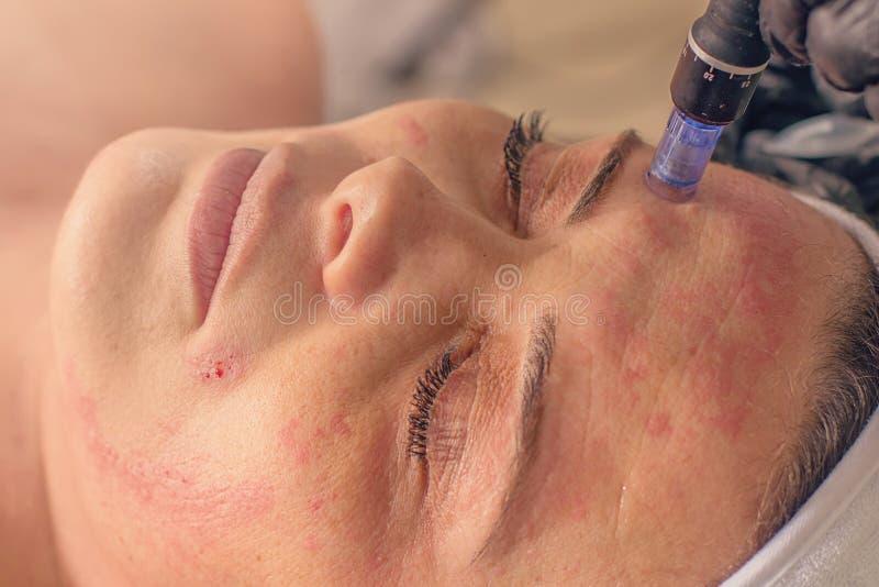Naald mesotherapy behandeling op een vrouwengezicht royalty-vrije stock afbeeldingen