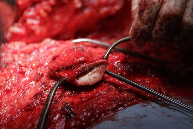 Nabel-Chirurgie lizenzfreie stockbilder