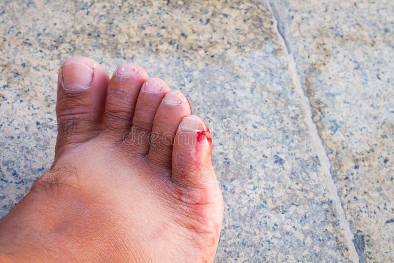 Nacięta krwista rana na stopie mężczyzna zdjęcia royalty free