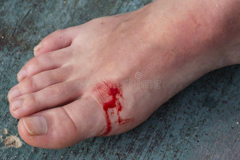 Nacięta rana na nodze kobieta zdjęcie royalty free