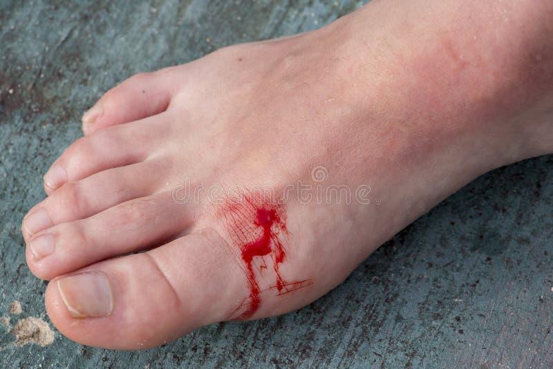 Nacięta rana na nodze kobieta zdjęcia royalty free