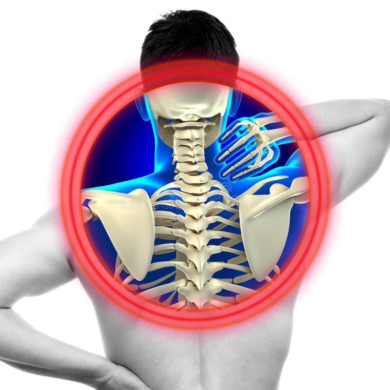 Nackenschmerzen-zervikaler Dorn lokalisiert auf weiß- WIRKLICHEM Anatomie concep stockbilder