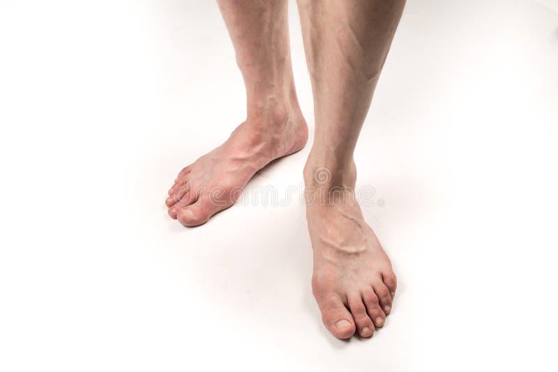 Nackte Beine eines Mannes mit Krampfadern auf einem weißen Hintergrund stockbild