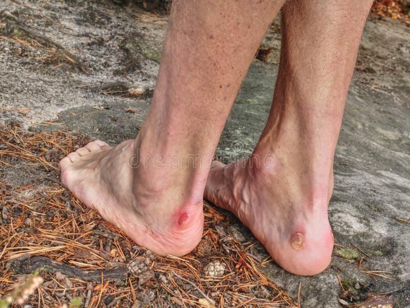 Nackte männliche Beine mit der schrecklichen Blase auf Spitze Verletzte Klettererferse stockfoto