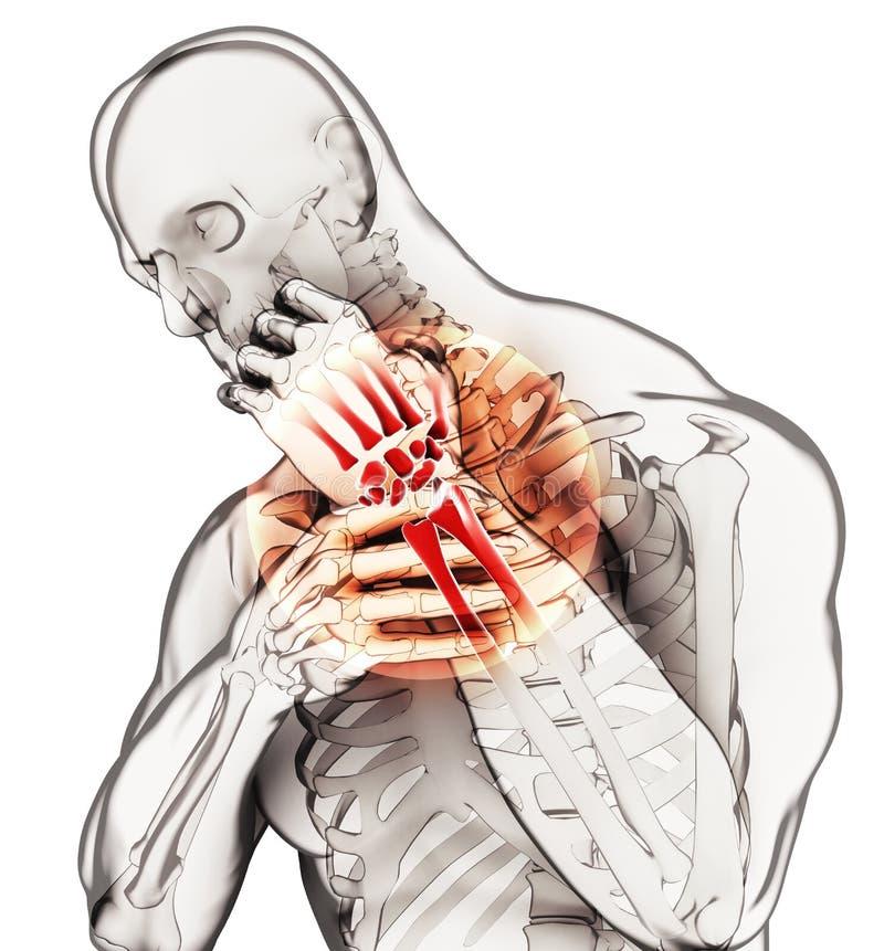 Nadgarstek bolesny - zredukowany promieniowanie rentgenowskie obraz stock