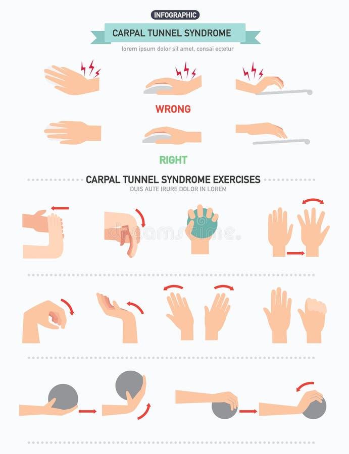 Nadgarstkowego tunelu syndrom infographic ilustracji