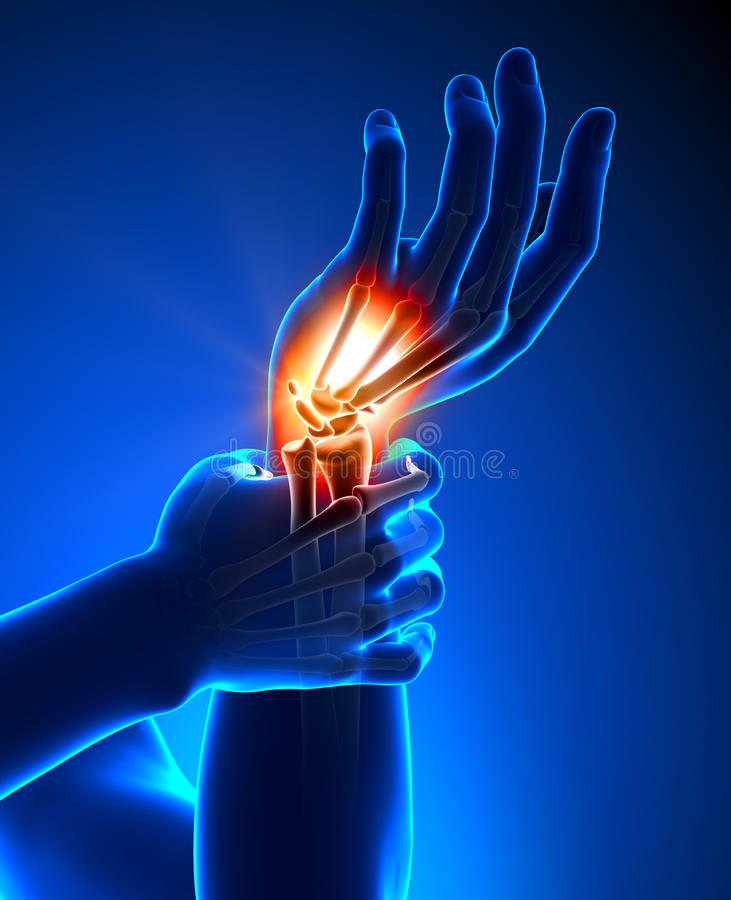 Nadgarstku ból - szczegół ilustracja wektor