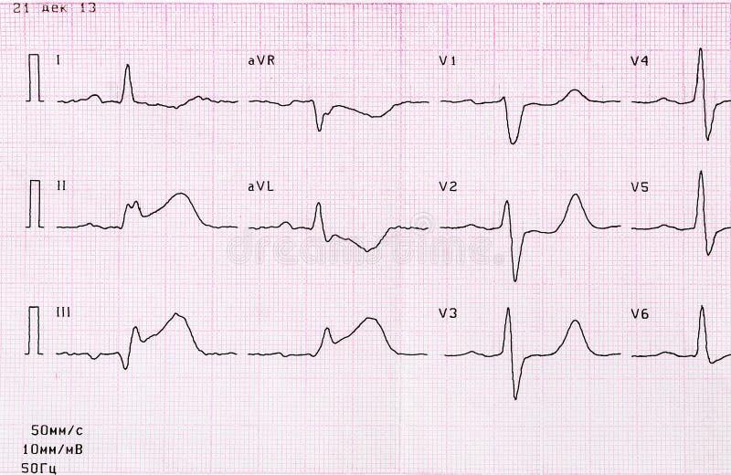 Nagrywa ECG z ostrym okresem miokardialny infarction zdjęcia royalty free