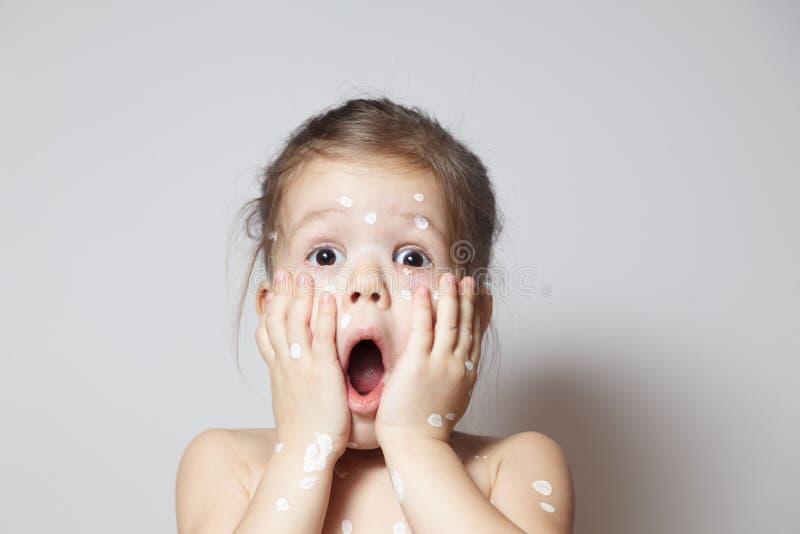 Nahaufnahme überraschte nettes kleines Mädchen mit Varizellevirus- oder -windpockenblasenhautausschlag, Bindehautentzündung, entz stockbilder
