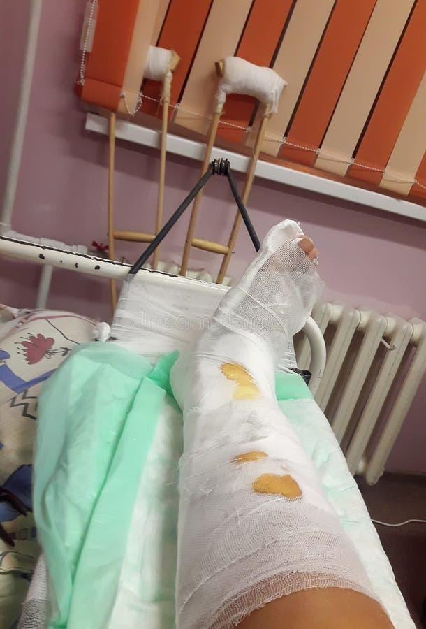 Nahaufnahme der Fiberglas-/Gipsbeinform eines Mannes nach einer laufenden Verletzung lizenzfreies stockfoto