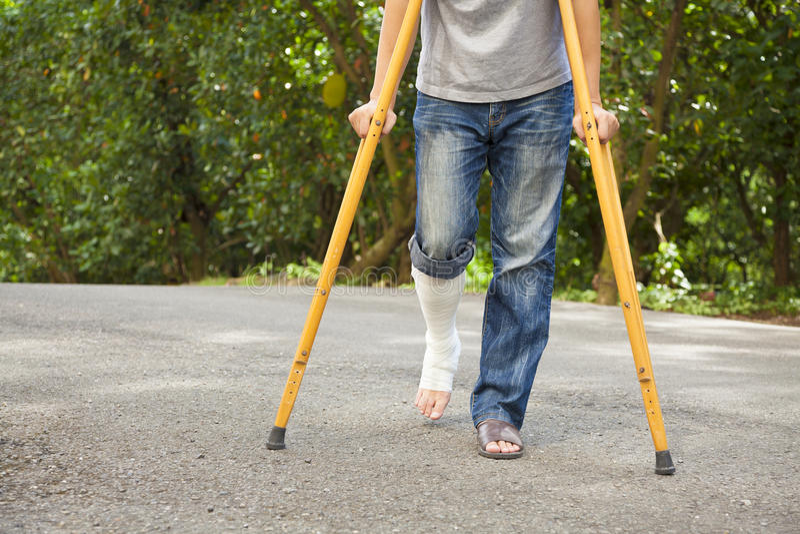 Nahaufnahme des Beines auf Verband mit Krücken lizenzfreie stockfotos