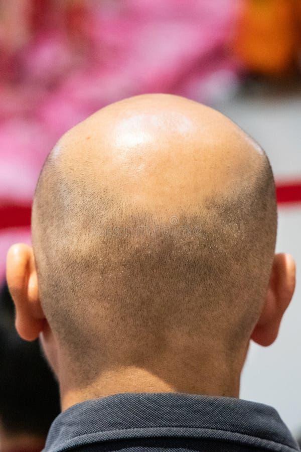 Nahaufnahme des Mannes mit der rasierten Kopfhaut kahl werdend Alopezie erleiden lizenzfreie stockfotografie