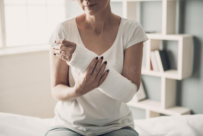 Nahaufnahme des weiblichen gebrochenen Armes im Gipsabdruck stockfotografie