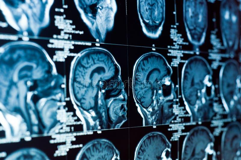 Nahaufnahme eines CT-Scans stockfotografie