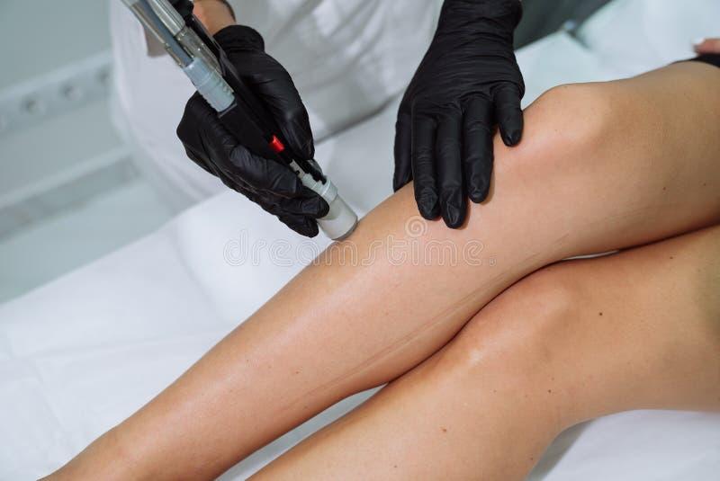 Nahaufnahmedoktorhände mit dem medizinischem und Cosmetologywerkzeug, das Verfahren Haarabbau Cosmetology macht Cosmetology und B lizenzfreie stockfotografie