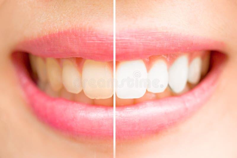Nahaufnahmezähne weiblich zwischen vor und nach Bürste die Zähne stockfoto