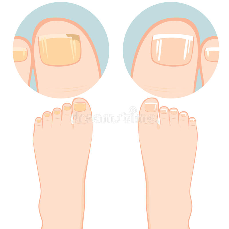 Nail Fungal Infection. Close up of two feet one with nail fungal infection and other healthy royalty free illustration