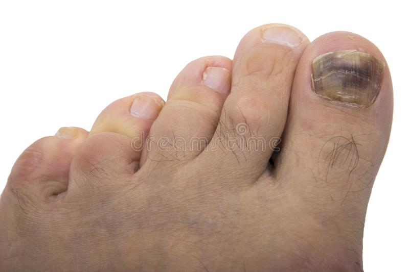 Nail Fungus Melanoma Stock Image Image Of Broken Disease