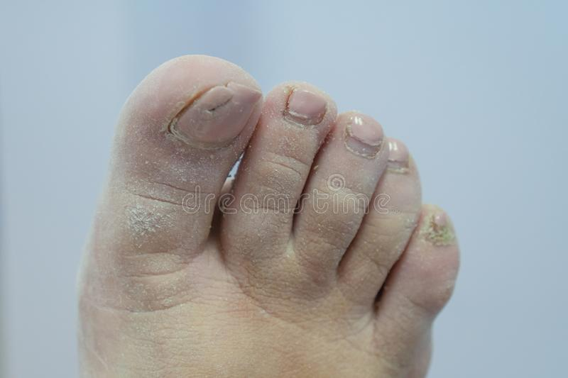 Nails up pedicure. Terribly scary nails. Foot fungus. Foot with fungal toe nail infection stock images