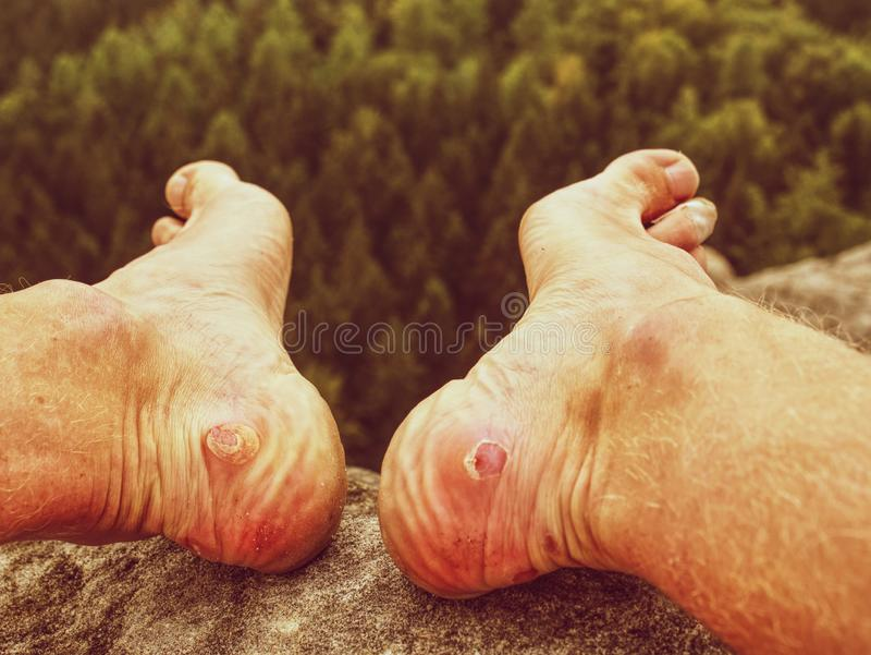 Naked foot with painful Heel wound in nature. Man feet. Caused by new shoes. Cracked terrible blister on human heel with walk valley trail tourist plaster royalty free stock photos