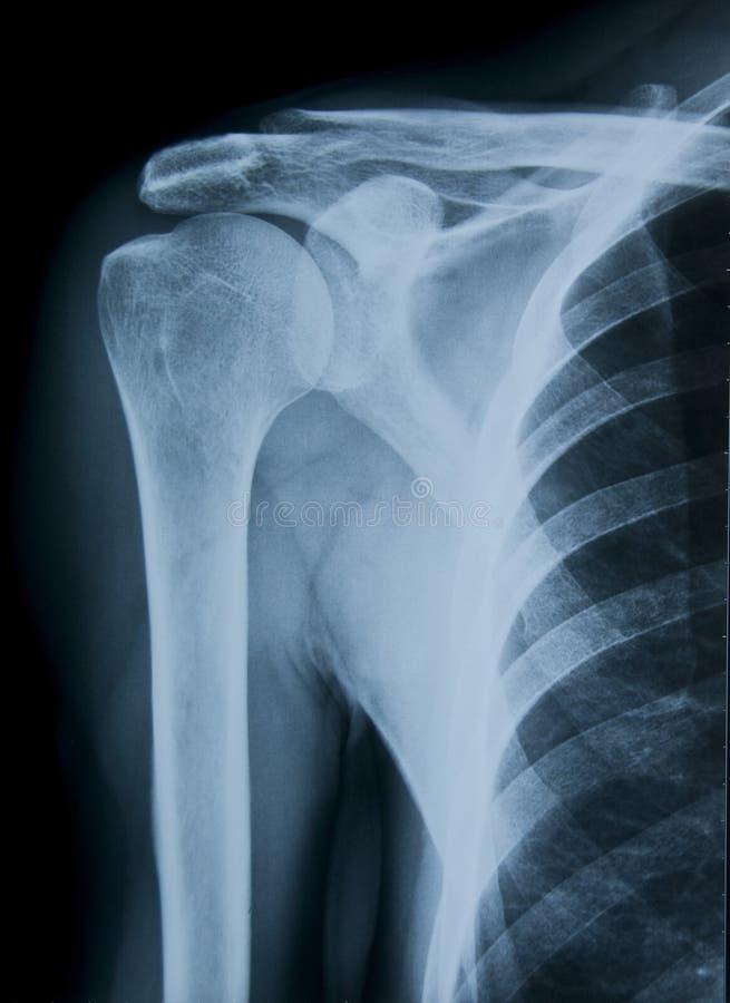 Naramienny Promieniowanie rentgenowskie zdjęcie stock