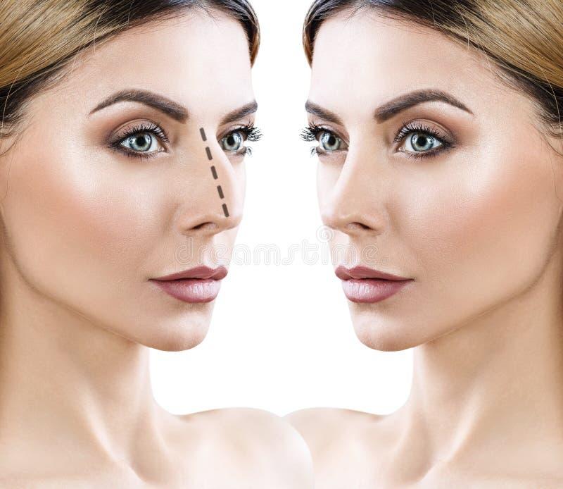 Nariz fêmea antes e depois da cirurgia estética foto de stock royalty free