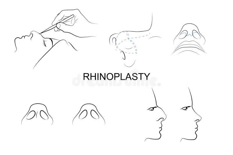 Nariz plástica Cirugía cosmética ilustración del vector