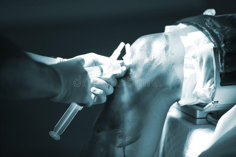 Narkos för arthroscopy för ortopedikirurgiknä royaltyfri foto