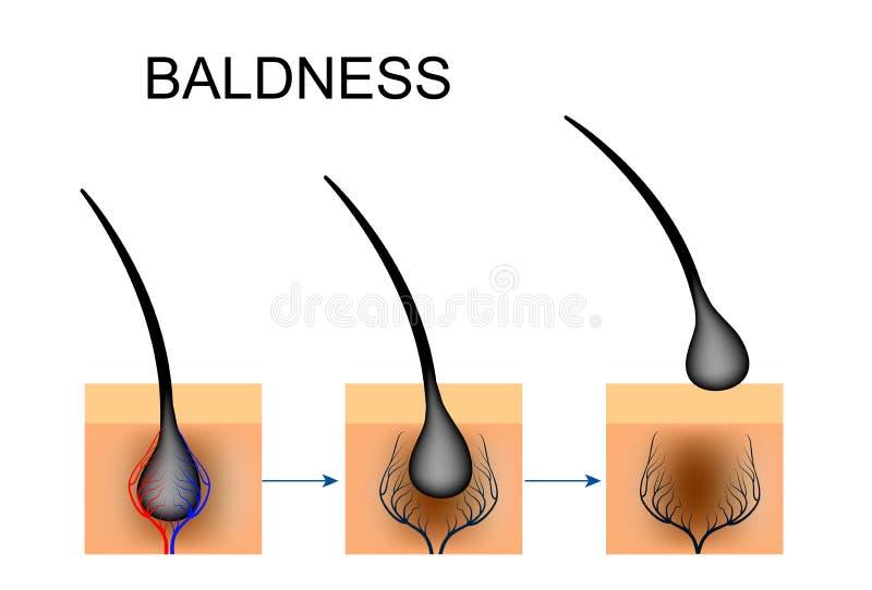 Naruszenie krwionośna cyrkulacja w włosianym follicle baldness ilustracji