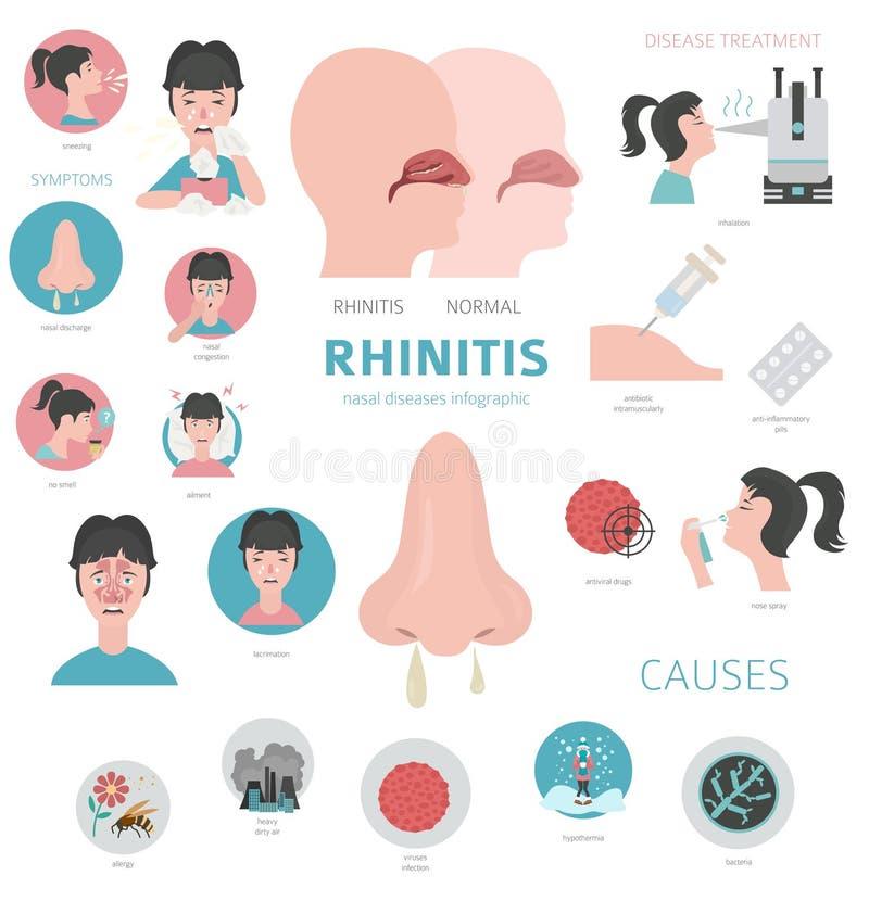 Nasal diseases. Rhinitis symptoms, treatment icon set. Medical infographic design. Vector illustration stock illustration