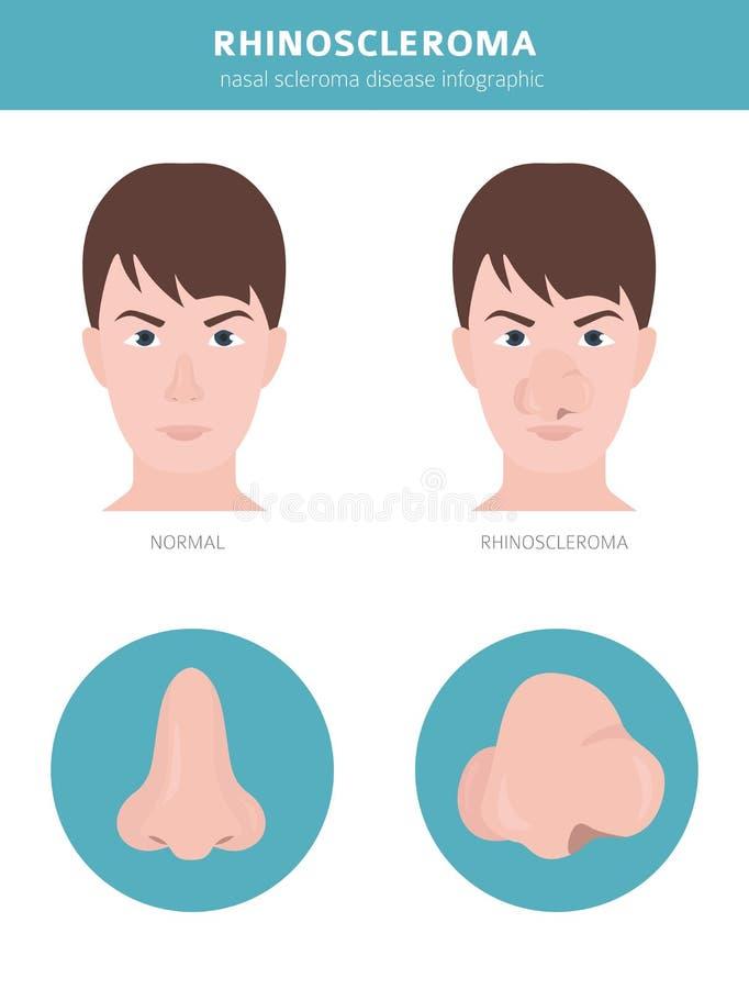 Nasal diseases. Rhinoscleroma symptoms, nasal scleroma treatment icon set. Medical infographic design. Vector illustration royalty free illustration