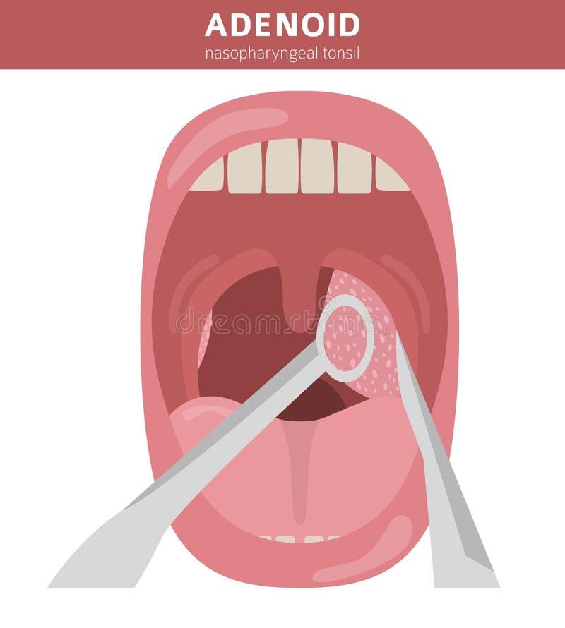Nasal e garganta, doenças do nasopharynx Diagnóstico dos adenoides e projeto infographic médico do tratamento fotos de stock royalty free