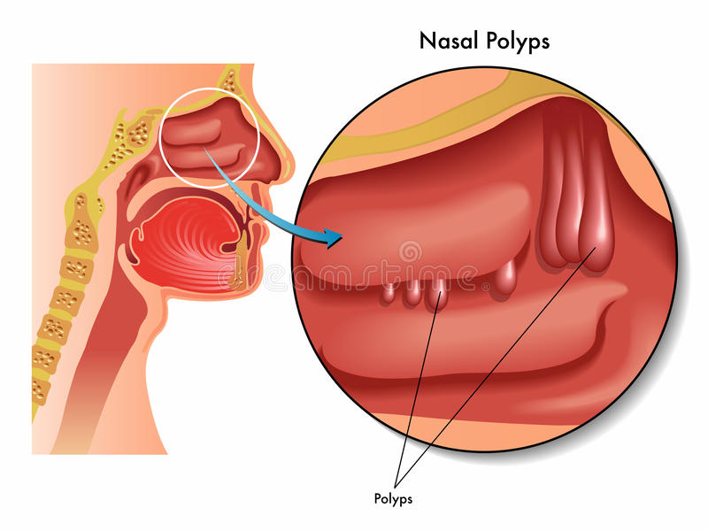 Nasal polyps. Medical illustration of the effects of nasal polyps vector illustration